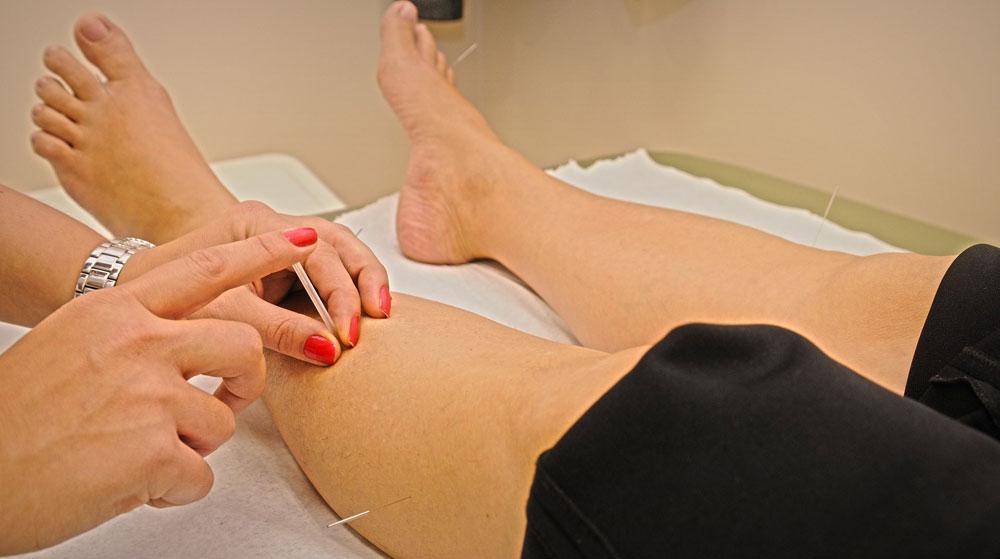 agopuntura fisioline policlinico modena